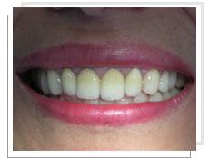 dentisterie esthetique en tunisie protheses dentaires prothese ceramo ceramique. Black Bedroom Furniture Sets. Home Design Ideas