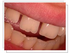 dentiste esthetique tunisie