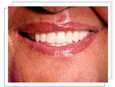 dentisterie esthetique en tunisie protheses dentaires prothese amovible. Black Bedroom Furniture Sets. Home Design Ideas